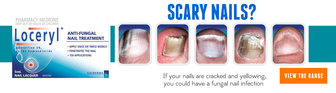 Loceryl Fungal Nail Infection